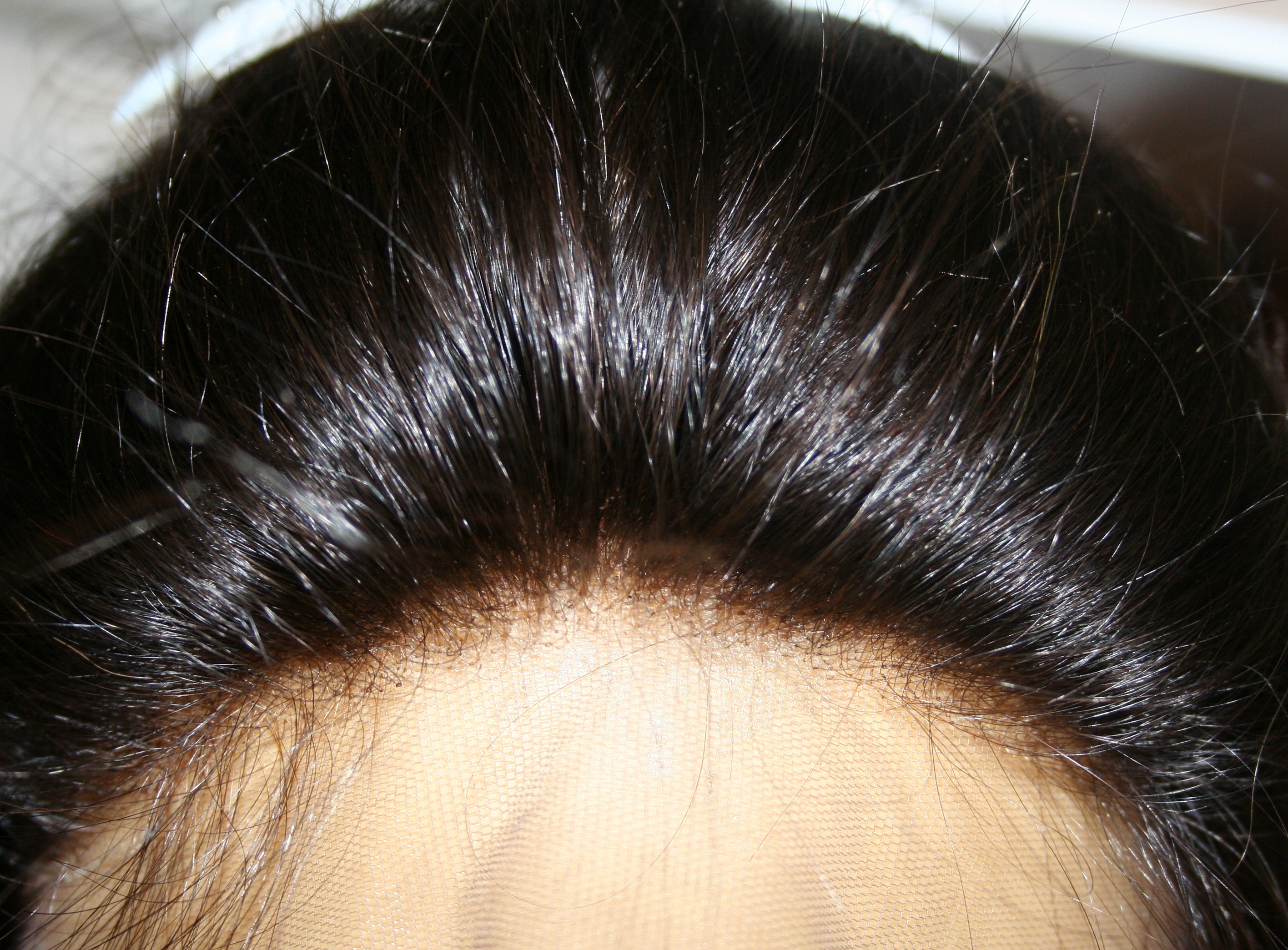 Femi #1 Natural Hairline View